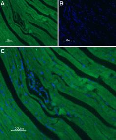 Guinea pig Anti-CaV1.2 (CACNA1C) Antibody