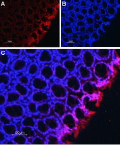 Anti-Na+/H+ Exchanger 2 (NHE-2) Antibody