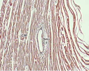 Expression of NCX1 in rat heart