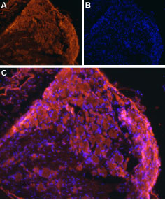 Expression of ENT1 in rat DRG