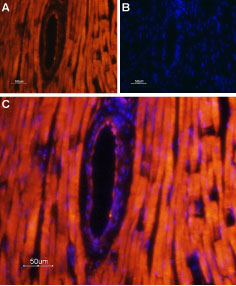 Expression of TRPML2 in rat heart