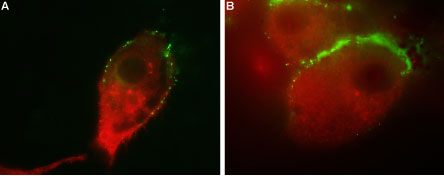 Colocalization of GluR1 and Vesicular GABA Transporter in human U-87 MG cells