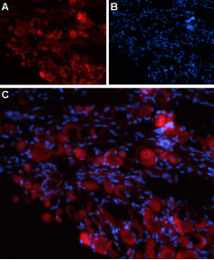 Expression of TRPV4 in rat DRG