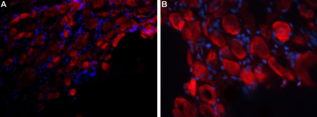 Expression of P2RX3 in rat DRG