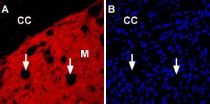 Expression ofnAChRα6in rat striatum