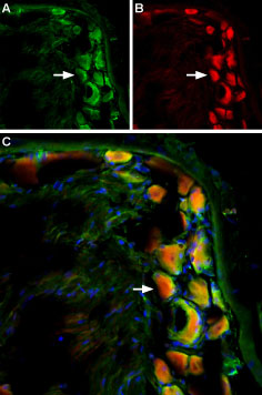 Multiplex staining of TRPV2 and mGluR5 in rat DRG
