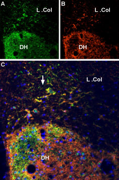 Multiplex staining of VGLUT2 and P2X7 Receptor in rat spinal cord