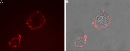 Expression of TRPV3 in rat PC12 cells