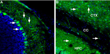 Expression of Ferroportin in mouse brain