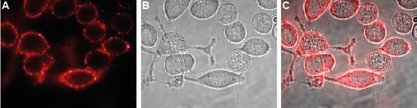 Expression of Kir4.1 in human U-87 MG cells