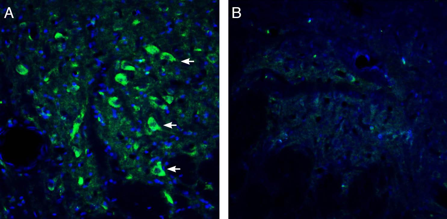 Expression of5HT2A Receptorin ratdorsal raphe nucleus.