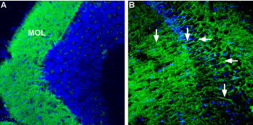 Expression of Corticotropin-releasing factor receptor 1 in mouse brain