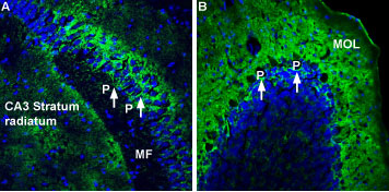 Expression of Na+/K+ ATPase α2 (ATP1A2) in mouse hippocampus and cerebellum