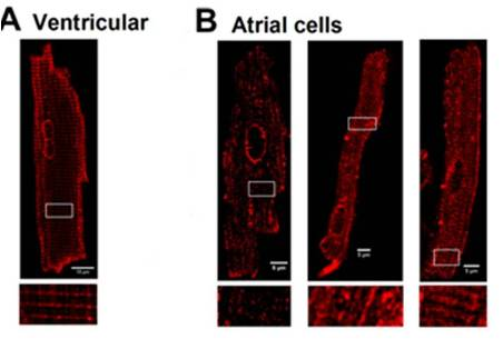 Localization of L-type CaV channels in rat atrial and ventricular cardiomyocytes.