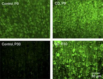 Anti-TRPC3 Antibody
