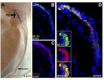 Anti-CACNA1G (Cav3.1) Antibody