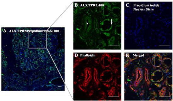 Expression of ALX/FPR2 in hMSG.
