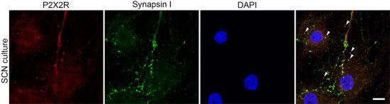 Anti-P2X2 Receptor Antibody