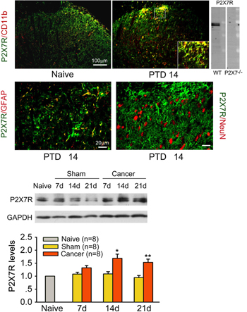 Expression and upregulation of microglial P2X7 receptor in cancer.