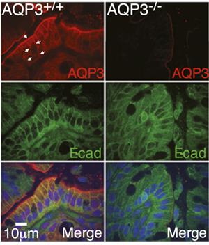 Anti-Aquaporin 3 Antibody