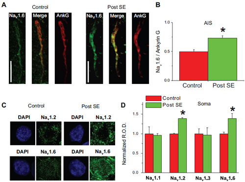 Expression of NaV1.6 increases in rat mECs during epileptogenesis.
