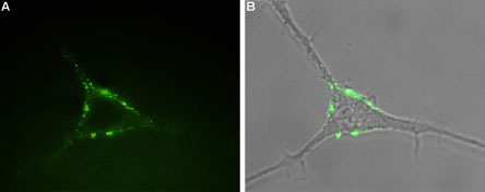 Expression of P2RY1 in rat PC12 cells