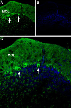 Expression of P2X1 receptor in mouse cerebellum