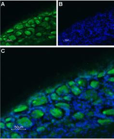 Expression of Serotonin receptor 3B in rat DRG