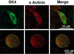 Mouse Anti-KCNN4 (KCa3.1, SK4) (extracellular) Antibody