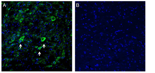 Expression of Kir2.1 in mouse midbrain.
