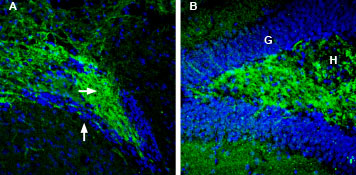 Expression of Synapsin-2 in mouse ventral striatum and rat hippocampus