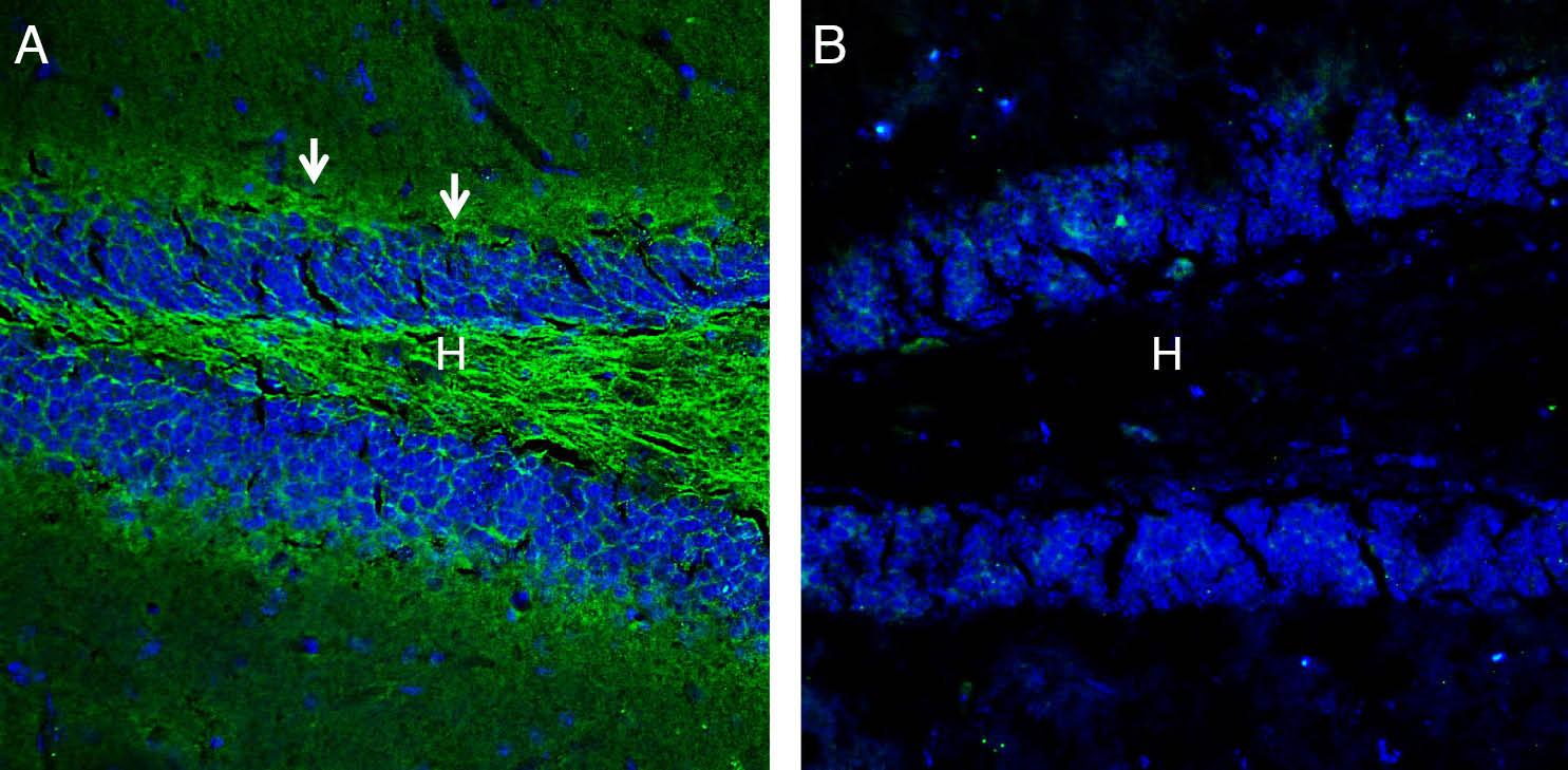 Expression ofNeurofascinin mousehippocampus.