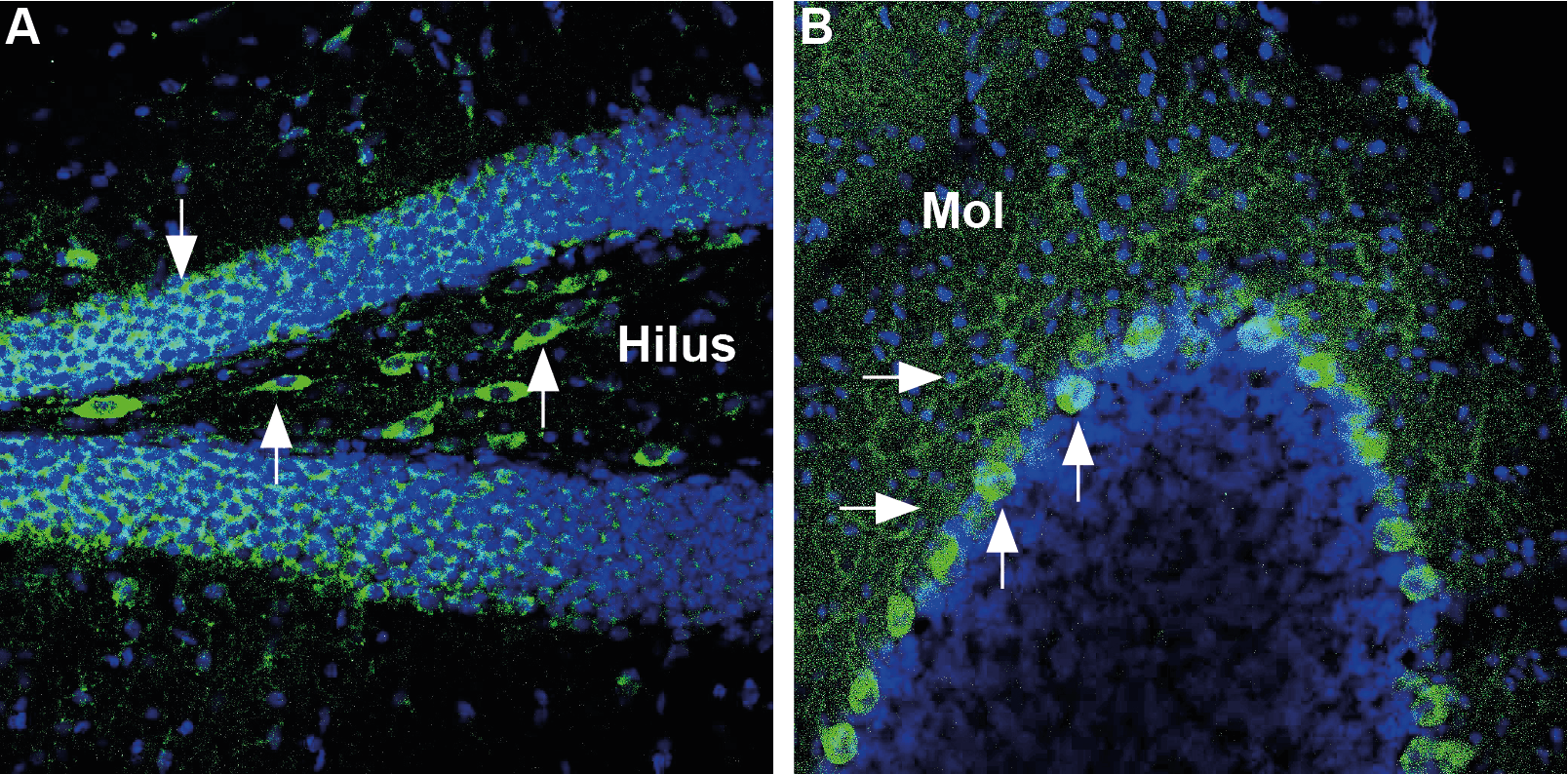 Expression of Glucose transporter 3 in mouse hippocampus and cerebellum