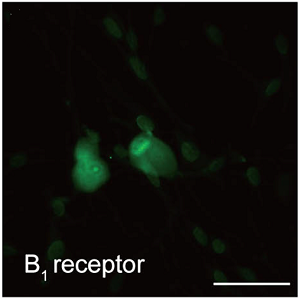 Anti-B1 Bradykinin Receptor (BDKRB1) Antibody