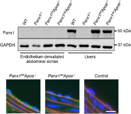 Anti-Pannexin 1 Antibody