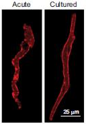Anti-HCN4 Antibody