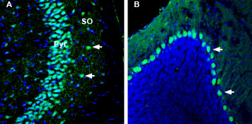 Expression of Kidins220 in mouse hippocampus and cerebellum