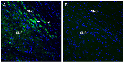 Expression of MCU in mouse midbrain.