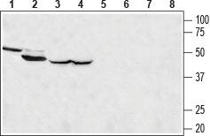 Anti-MCU Antibody