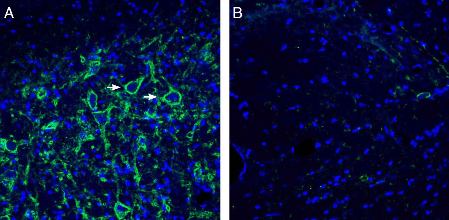 Expression ofNeuroligin-3in ratdeep cerebellar nuclei.