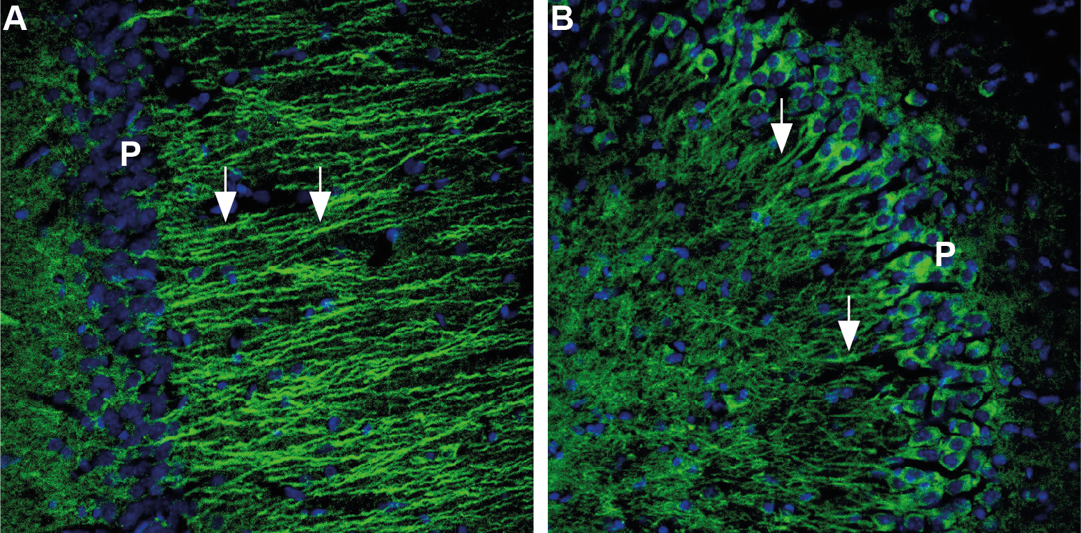 Expression of 5-Hydroxytryptamine receptor 1B in rat and mouse brain