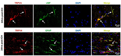 Expression of TRPV4 in rat perihematomal area following ICH.
