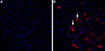 Alomone Labs α-Conotoxin ImI-ATTO Fluor-590 stains rat deep cerebellar nuclei.