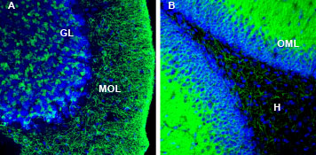 Expression of KCC2 in rat cerebellum and hippocampus.