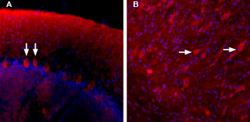 Binding of Stichodactyla Toxin-ATTO Fluor-590 to Purkinje cells in the rat cerebellum.