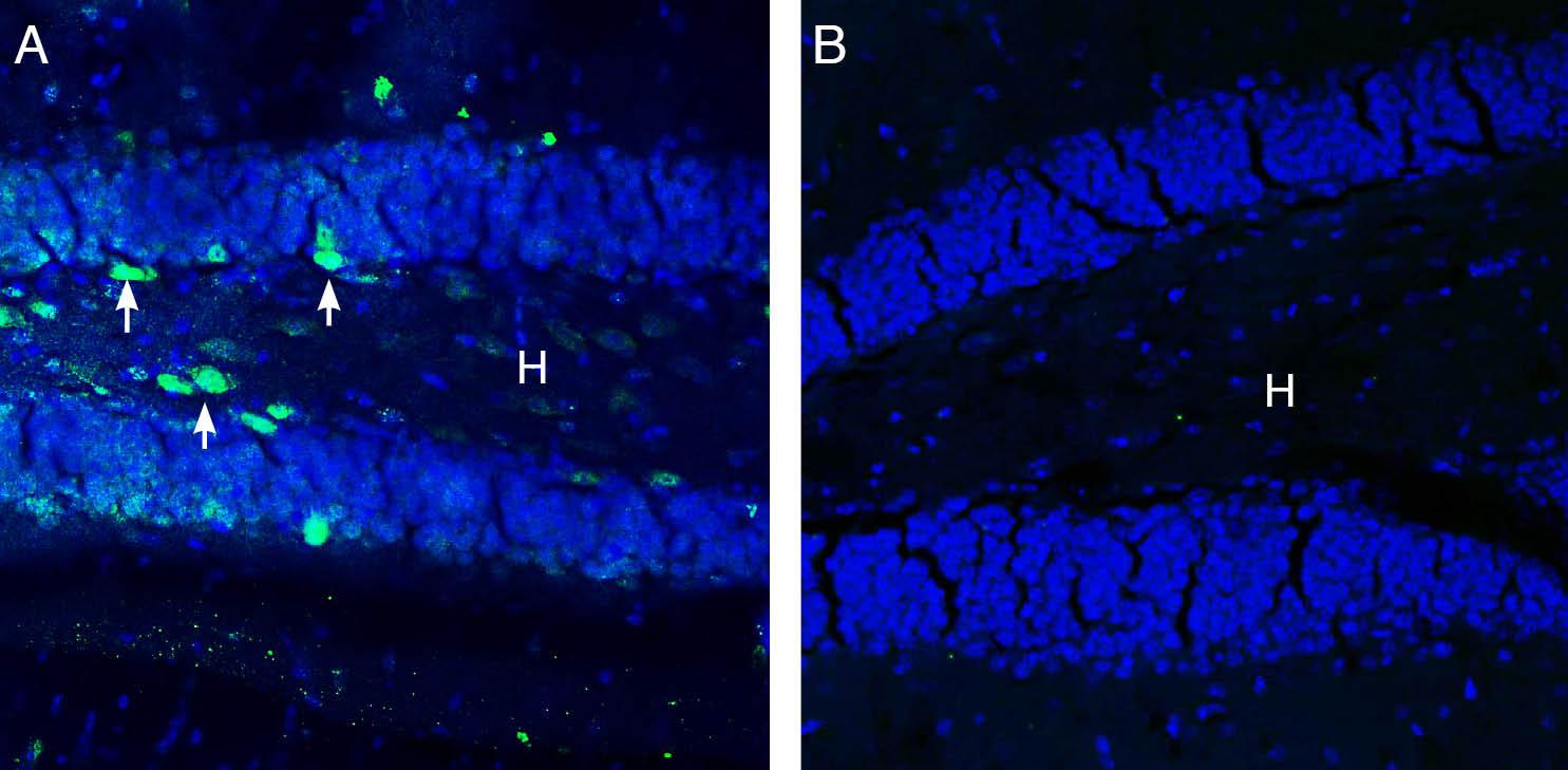 Expression ofGABA(A) π Receptorin mouse hippocampus.