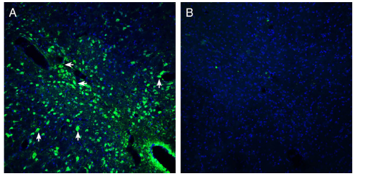 Expression of Presenilin-2 in mouse midbrain