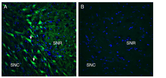 Expression of GPR55 in rat substantia nigra.