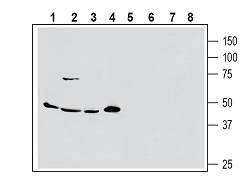 Western blot analysis of human MCF-7 breast adenocarcinoma (lanes 1 and 5), human Colo-205 colorectal adenocarcinoma (lanes 2 and 6), human PANC-1 pancreas ductal adenocarcinoma (lanes 3 and 7) and human Malme-3M melanoma cell line lysate (lanes 4 and 8):