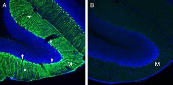 Expression of Secretin Receptor in mouse cerebellum